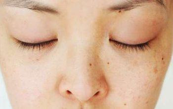 cildi parlatan leke giderici gözenekleri sıkılaştıran maske