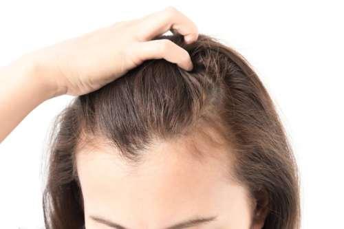 saç derisi sağlığı Witch Hazel Cadı Fındığı