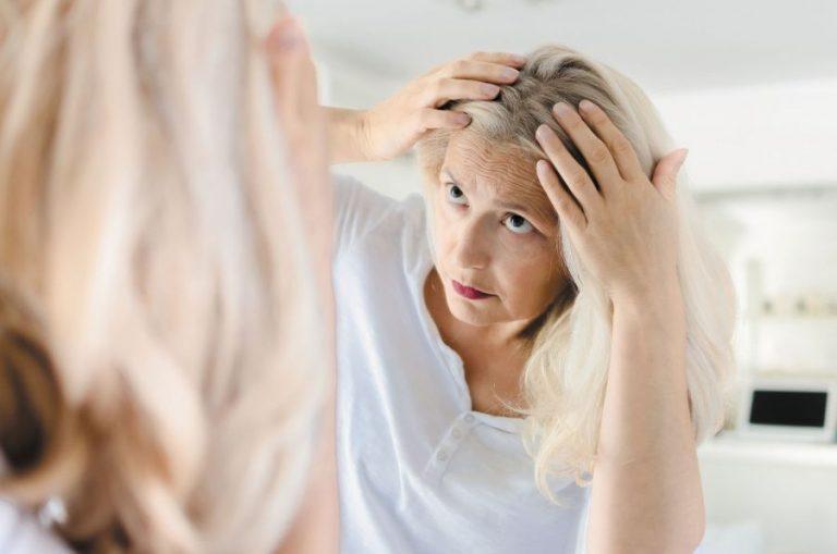 Saçtaki açıklıklar nasıl kapatılır saç seyrekliği