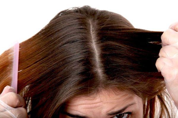 saç telleri nasıl kalınlaşır kepek için doğal çözüm