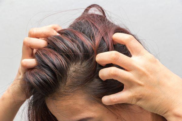 saç derisinde kabuklanma kaşıntı kötü koku